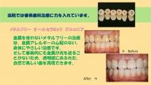 集患.com  看板・販促広告など複合的なマーケティング戦略で歯科医院の集患をお手伝いします。-b18